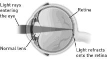cataract-1