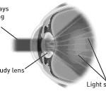 cataract-2